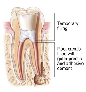 Root canal thereapy at Harmony Dental