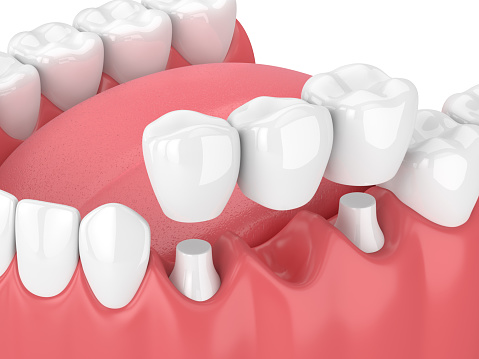 Fixed dental bridges and implants at Harmony Dental
