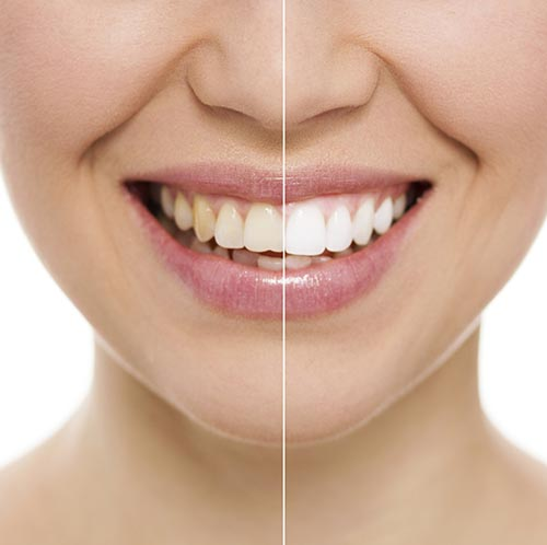 Teeth whitening treatment at Harmony Dental